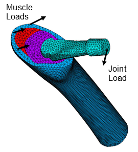 Finite-Element-Model-of-Total-Hip-Replacement