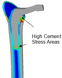 Stress Analysis of a Total Hip Replacement